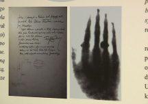 Ropczyce: 125 lat temu wykonano pierwsze w Polsce badanie radiologiczne